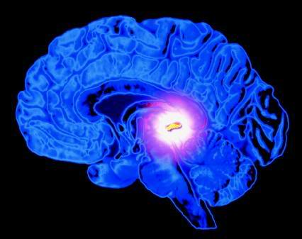 Fluoride-Free Pineal Gland is More Important than Ever