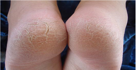 How-To-Cure-Cracked-Heels-The-Natural-Way
