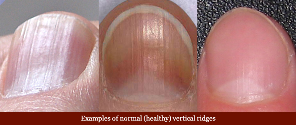 Vertical Ridges Fingernails Normal