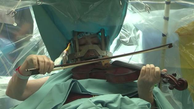 VIOLINIST PLAYS DURING BRAIN SURGERY