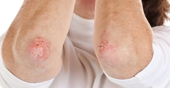 8 Natural Remedies For Treating Psoriasis