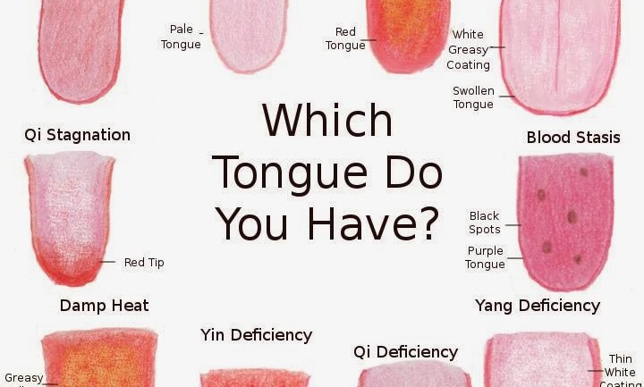 How The Color Of Your Tongue Can Reveal Health Problems – 7 Warning Signs