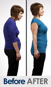 before-after-posture-correction-women