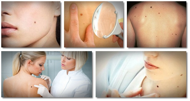 Remedy-for-Moles-Warts-and-Skin-Tags