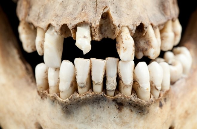Our Ancestors Had Better Teeth Than Us. Where Did Our Teeth Go Wrong?