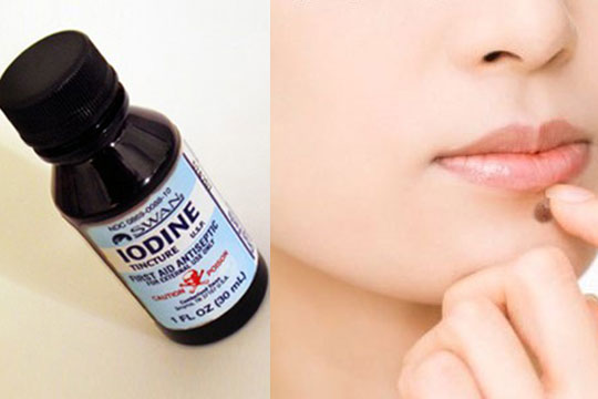 home-remedies-for-moles-iodine-solution