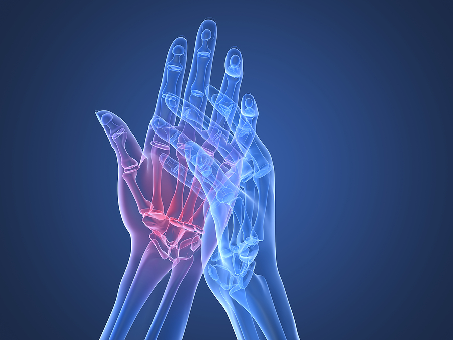 polymyalgia rheumatica treatment without steroids