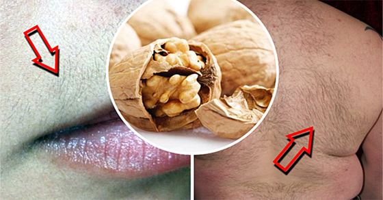 How To Remove Hair From The Face And Body With This Ancient Recipe
