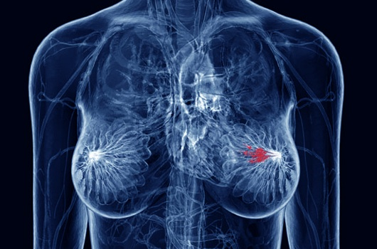 Primary Causes Of Breast Cancer You'll Want To Know