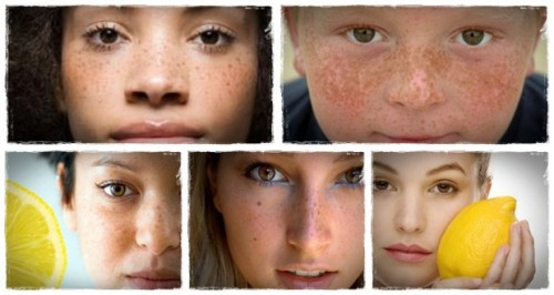 11-tips-on-how-to-remove-freckles-naturally-with-good-lifestyle-and-foods-help