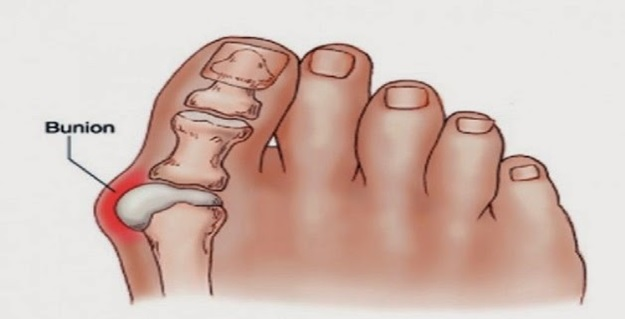 Get Rid of Bunions Naturally With This Simple But Powerful Remedy