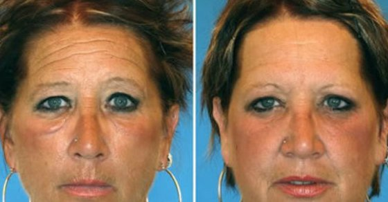 What 6 Smoker Vs. Non-Smoker Identical Twins Look Like After Years of Smoking