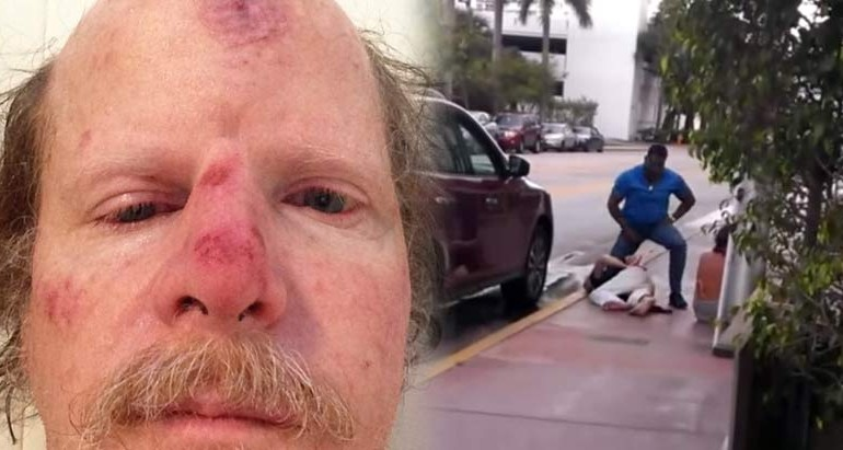 Good Samaritan Reports Cop for Assaulting a Person, He's Then Beaten and Arrested For It