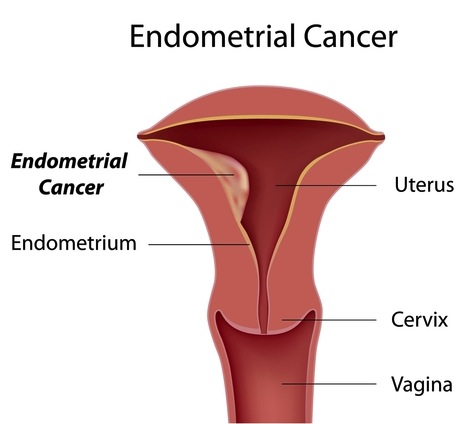 Uterine (Endometrial) Cancer.. Symptoms, Risk Factors and Prevention