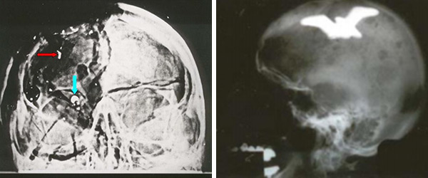 JFK Autopsy 'Bullet Fragment' X-Ray Was Faked
