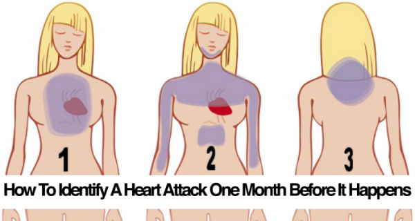 Here's How To Identify A Heart Attack One Month Before It Happens