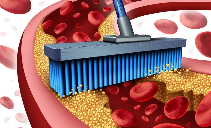 11 Foods That Help To Unclog Your Arteries Naturally