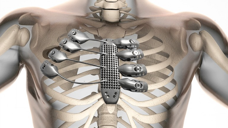 Patient Gets 3-D Printed Metal Ribs