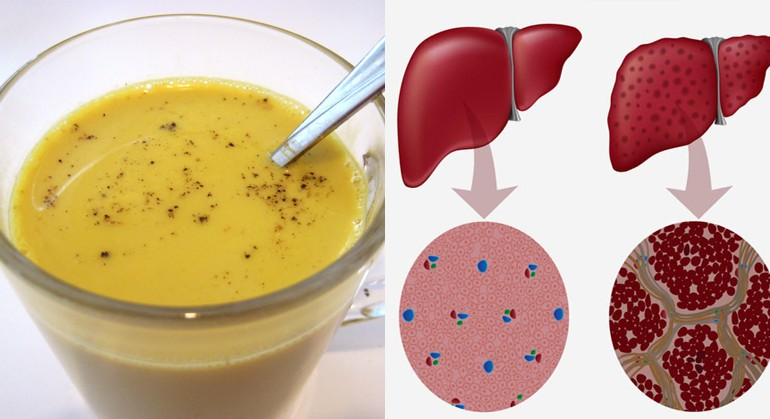 Get a Complete Liver Detox in a Week with This Turmeric Tea Recipe