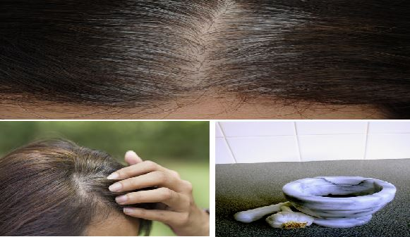 Eliminate White Hair, Regrow Hair And Prevent Hair Fall In Just 5 Minutes