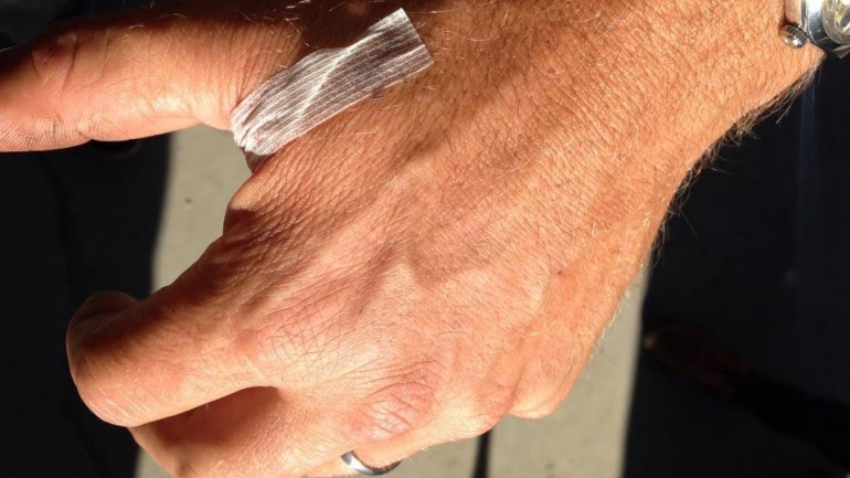 I Just Got a Computer Chip Implanted In My Hand — and The Rest of The World Won't Be Far Behind