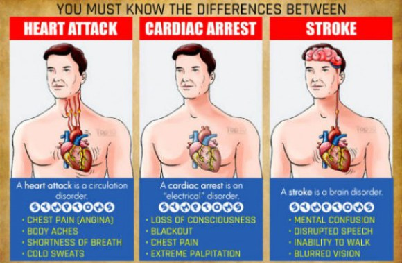 You-Must-Know-the-Differences-between-a-Heart-Attack-Cardiac-Arrest-and-Stroke-600x392