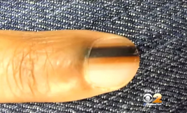 If You See This Black Line On Your Nail Or Someone Else's This Is What It Means