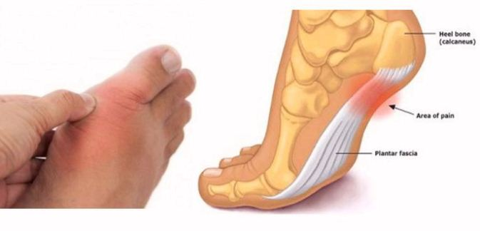 Check-Your-Feet-and-See-What-They-Are-Telling-You-about-Your-Blood-Pressure-Thyroid-and-Arthritis-Risk