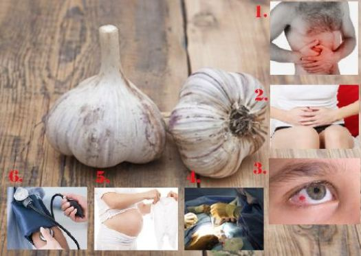 There are Six Types of People Who Should NOT Eat Garlic