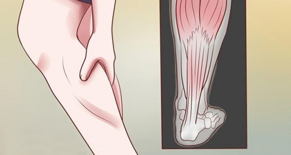 stop restless leg syndrome