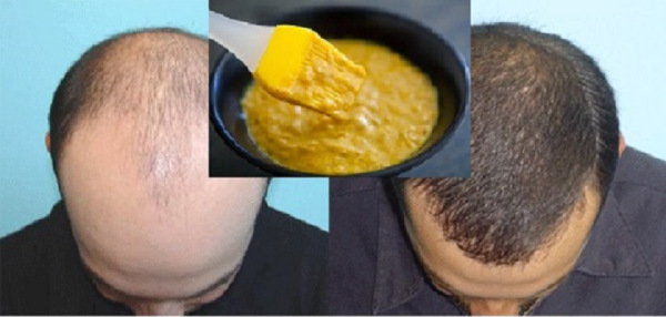Extremely-Effective-Homemade-Mask-for-Hair-Growth