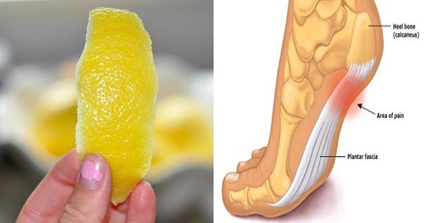 Lemon-Peel-Trick-to-Get-Rid-of-Inflammation