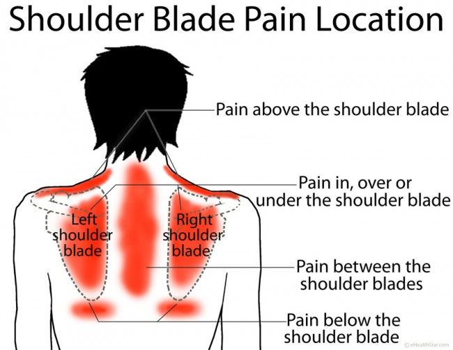 Shoulder-Blade-Pain-Location