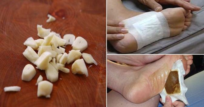 Make Detox Foot Pads at Home and Remove All the Dangerous Toxins from Your Body Overnight