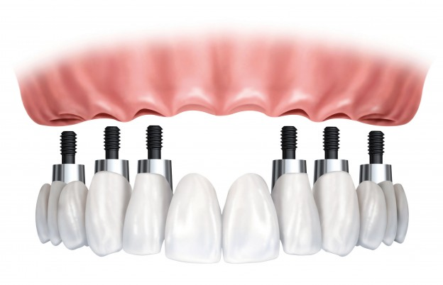 Tooth Implants: Don't Even Think About Having Them