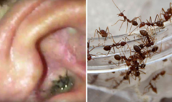 1000 Ants Coming Out of Girl's Ear…..Colony Of Ants Found Living In 12-Year-Old Girl's Head