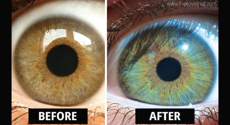 This Is How My Eyes Changed Color After Eating Raw Vegan For 6 Years
