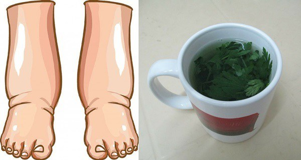 The-Most-Powerful-Natural-Remedy-For-Swollen-Legs-