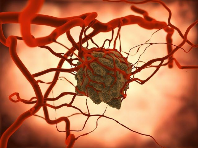 mri-shows-how-cancer-cells-thrive-on-sugar