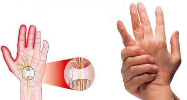 Your Fingers Are Numb? Don't Play Games, But Immediately Visit A Doctor Before It Is Too Late