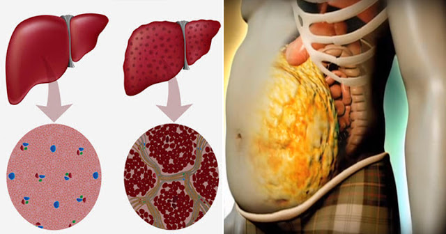 How To Unclog And Detox Your Stressed-Out Liver In Just 72 Hours