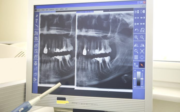 Stem Cells Could Make Root Canals History