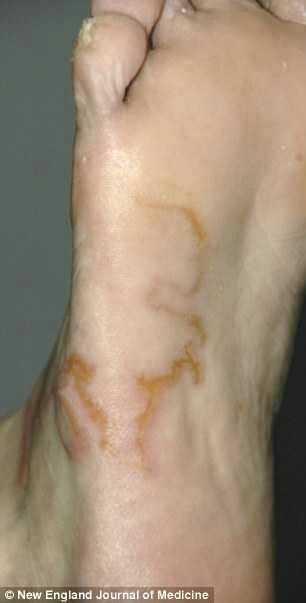 He Thought It S Just A Varicose Vein But When Doctors