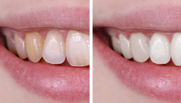 HOW TO MAKE YOUR TEETH WHITER WITHOUT DESTROYING YOUR ENAMEL