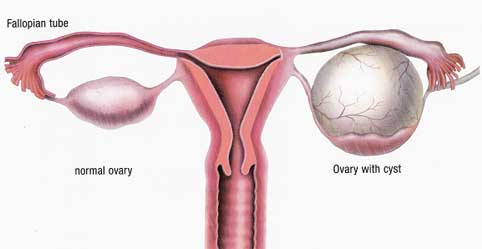 Ovarian Cysts – Warning Signs You Should Not Ignore