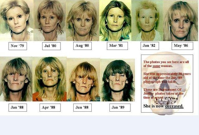 Meth Effects: The Ravaged Faces Of Meth Result From Increase In Molecules Causing Cell Death