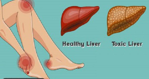 16 Warning Signs Your Liver Is Overloaded With Toxins