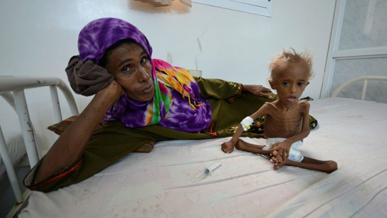 Shocking Images of Starved Kid Show Horrors of Yemen's War