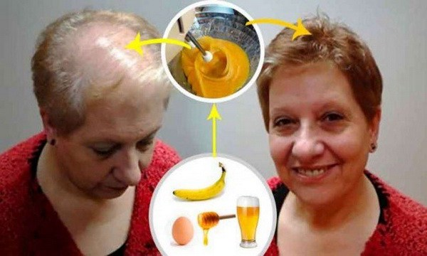 Home Recipe To Regrow Your Hair
