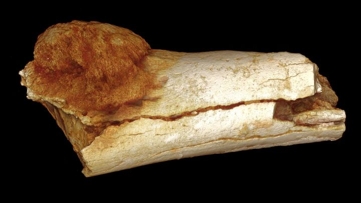 1.7 Million Year Old Human Cancer Is The Oldest Ever Found